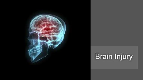 Los Angeles brain injury attorney